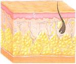 Celulite - Fase fibrosa