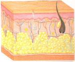 Celulite - Fase de polimerização