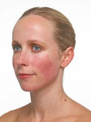 Mulher com vermelhidão facial