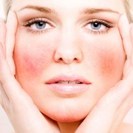 Resultado de imagem para pele sensível